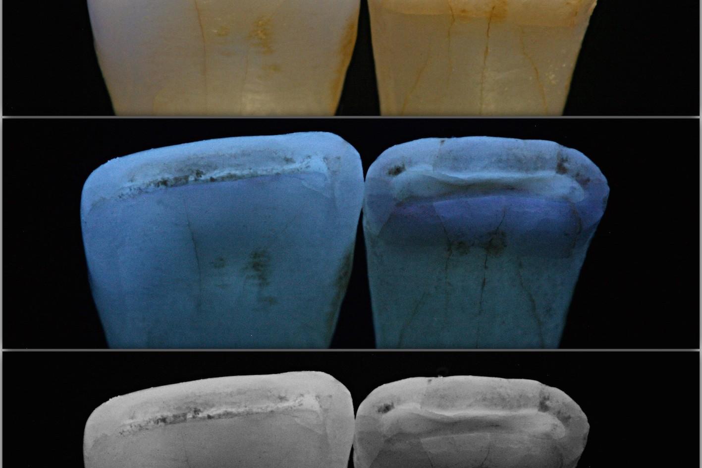 Diese Ansicht natürlicher Zähne von inzisal (Schneidekante) zeigt die lichtoptische Eigenschaften