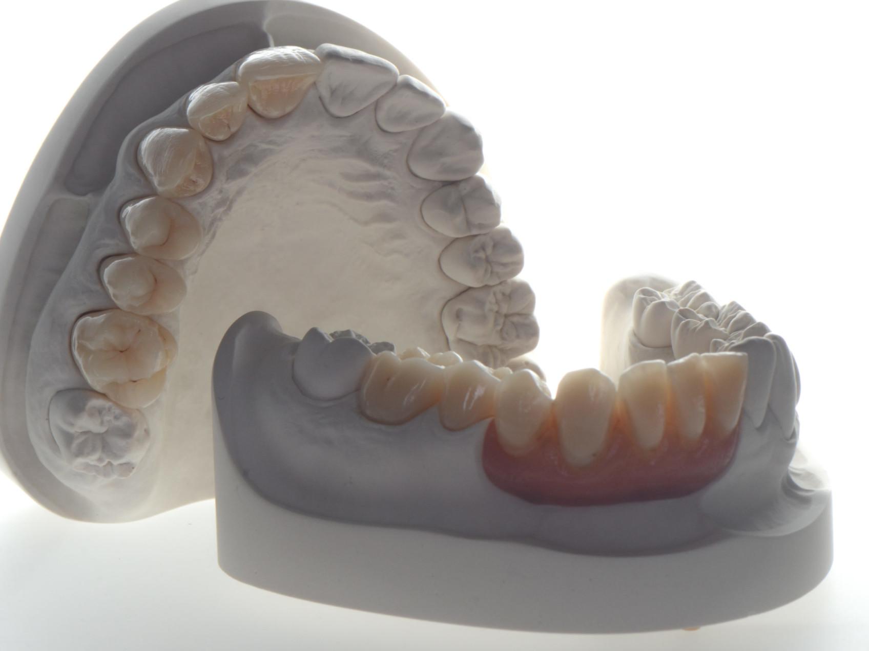 Zahntechnik Zahnmedizin Texte Artikel Bericht Ivoclar Curriculum