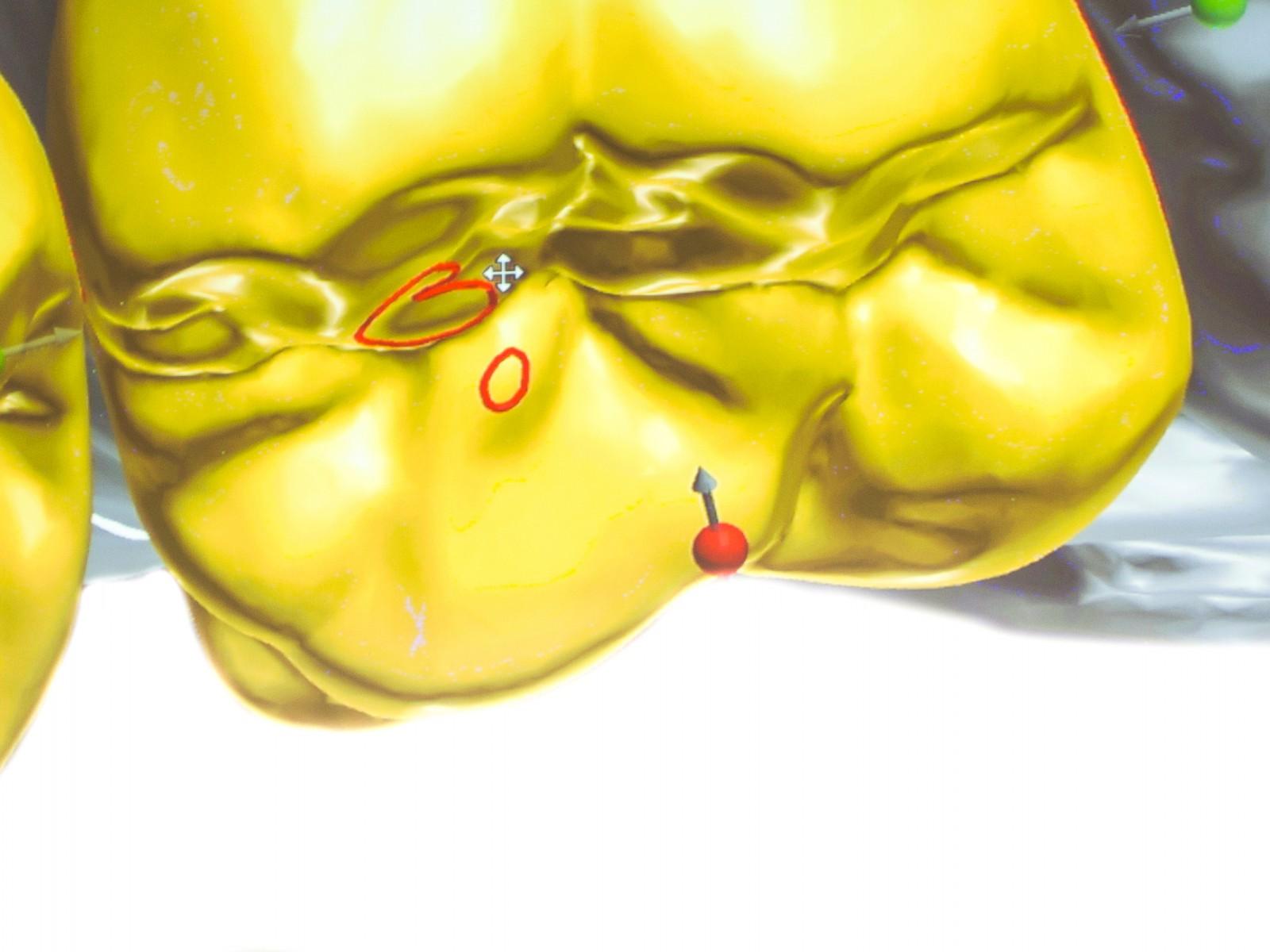 Zahntechnik Zahnmedizin Texte Schreiben Artikel Straumann Kongress Peters