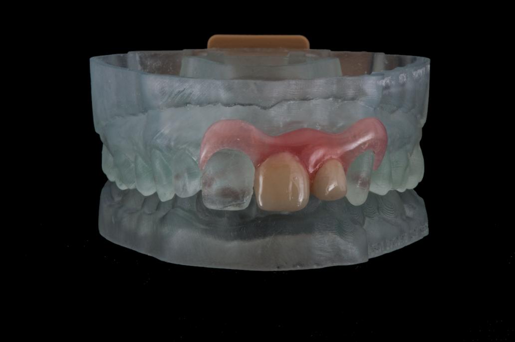 3D Druck Zahnmedizin, Zahntechnik, Fachtext, Artikel